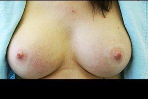 Αποχρωματισμός θηλής και στους δύο μαστούς